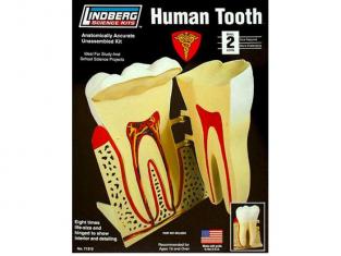 Lindberg maquettes educative 71312 Dent humaine